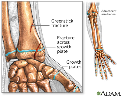 Fractures across a growth plate