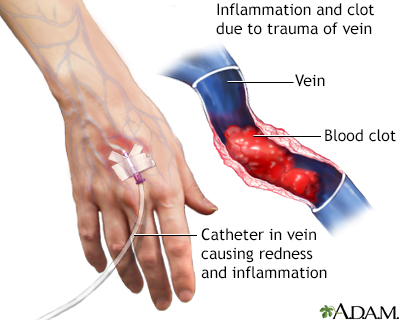 Superficial thrombophlebitis