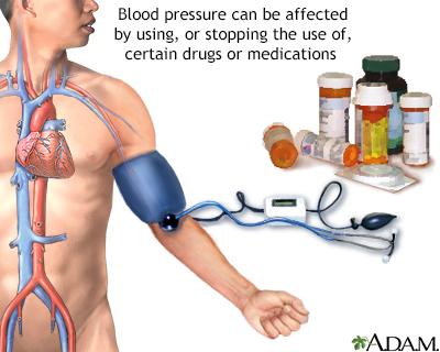 Drug induced hypertension