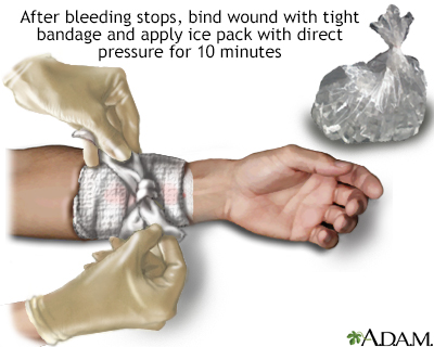 Stopping bleeding with pressure and ice
