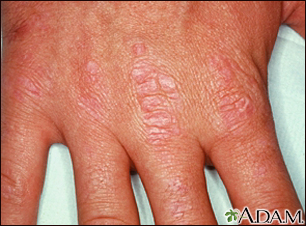 Dermatomyositis - Gottron's papules on the hand