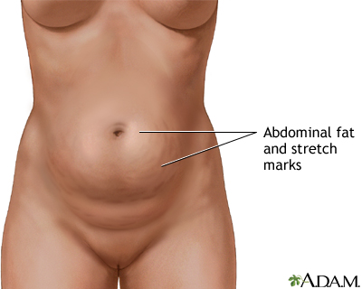 Abdominal wall surgery Information | Mount Sinai - New York
