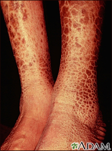 Ichthyosis, acquired - legs
