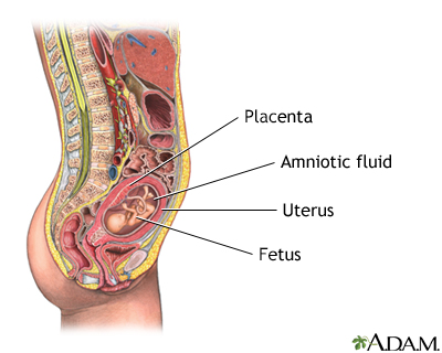 Amniocentesis - series - Indication