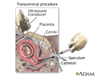 Procedure, part 2 - transcervical