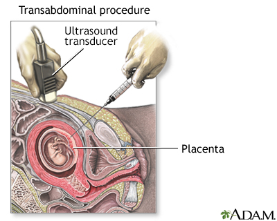 Procedure, part 2 - transabdominal