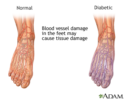 Diabetic blood circulation in foot