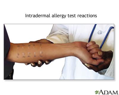 Allergy testing - skin Information | Mount Sinai - New York