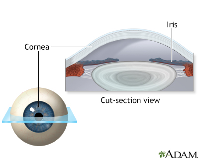 Lasik eye surgery - series - Normal anatomy