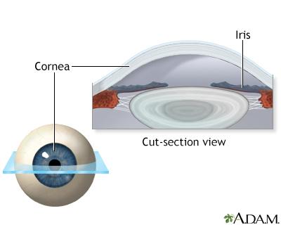 Lasik eye surgery - series - Normal anatomy