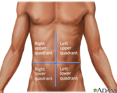 Abdominal pain Information | Mount Sinai - New York