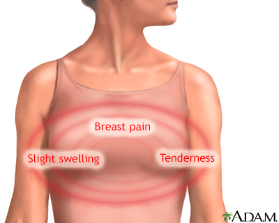 Breast pain