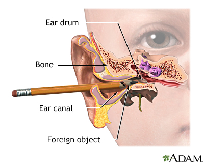 Foreign object in ear