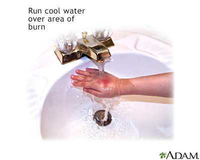 Minor burn treatment - run under cool water