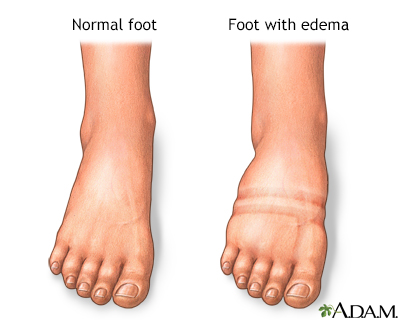 Foot Leg And Ankle Swelling Information Mount Sinai New York