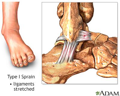 Type I ankle sprain