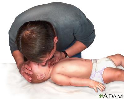 Infant not breathing