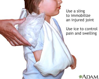 Triangular shoulder sling
