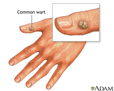 wart virus in bloodstream