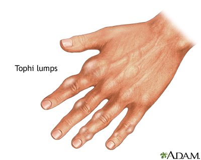 Tophi gout in hand