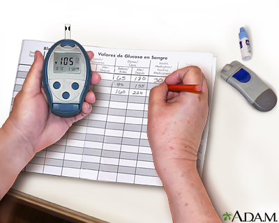 Monitoring blood glucose: Record your reading