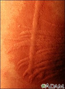 Dermatographism - close-up