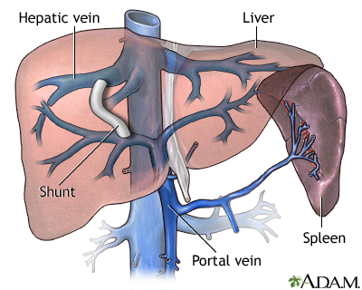 Transjugular intrahepatic portosystemic shunt