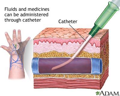 Peripheral intravenous line