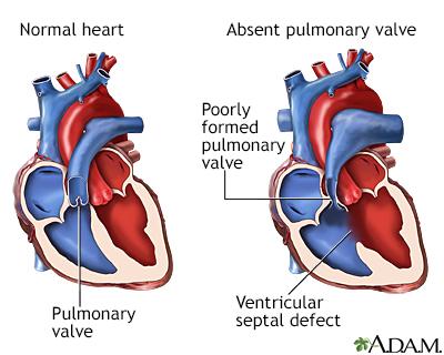 Válvula pulmonar ausente