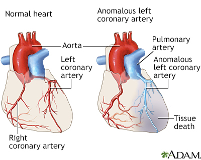 Anomalous left coronary artery