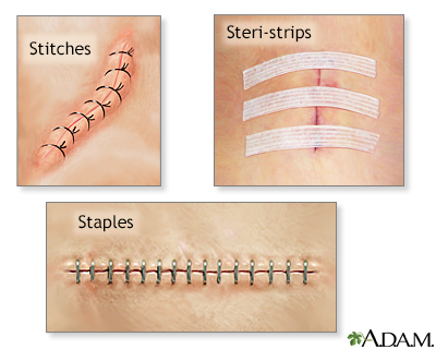 Incision closures