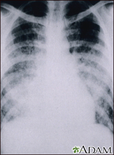 Chickenpox, acute pneumonia - chest X-ray