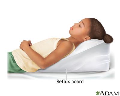 Reflux board