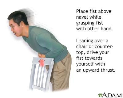 Heimlich maneuver on oneself