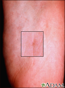 Basal cell nevus syndrome - plantar pits