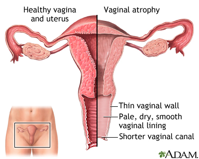 Treatment Options For Vaginal Dryness And