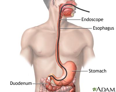 Esophagogastroduodenoscopy (EGD)