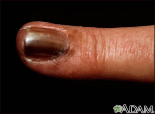 Skin cancer, melanoma on the fingernail