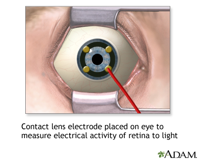 Contact lens electrode on eye