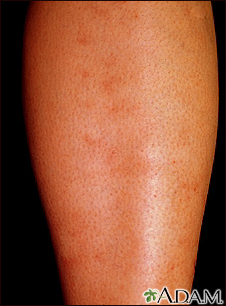 Polyarteritis - microscopic on the shin
