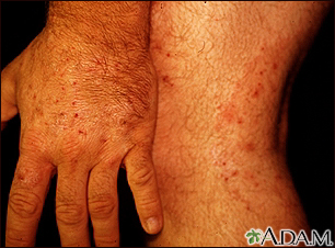 Ringworm - tinea on the hand and leg
