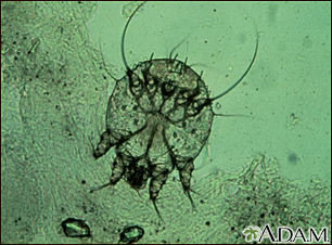 Scabies mite - photomicrograph