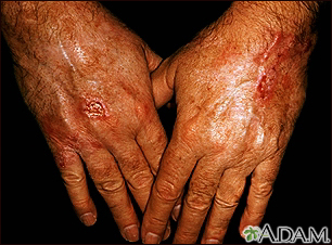 Skin cancer - squamous cell on the hands