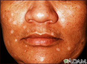 Vitiligo - drug induced