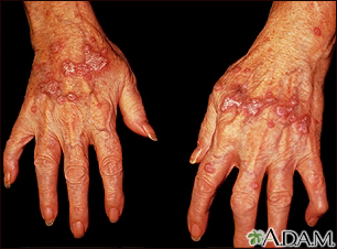 Lichen planus on the hands