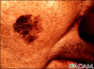 Skin cancer, close-up of lentigo maligna melanoma
