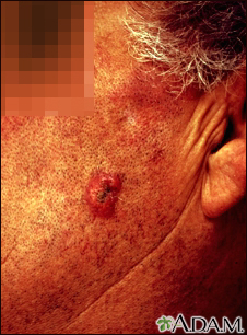 Squamous cell carcinoma - invasive