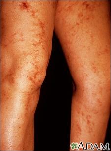 Livedo reticularis on the legs