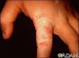 Ringworm - tinea manuum on the finger