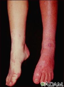 Sturge-Weber syndrome - legs